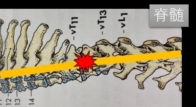 椎間板ヘルニアと脊髄梗塞6