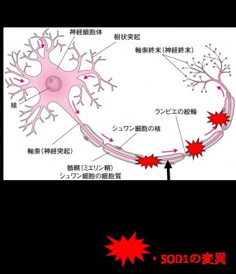 変性性脊髄症3